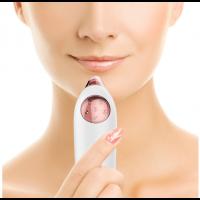 Mitesser Entferner 4in1 Porenreiniger Gesichtsmitesser Hautreiniger
