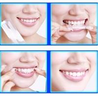 Zahnweiß Streifen Bleaching Stripes White Stripes Zahnaufhellung